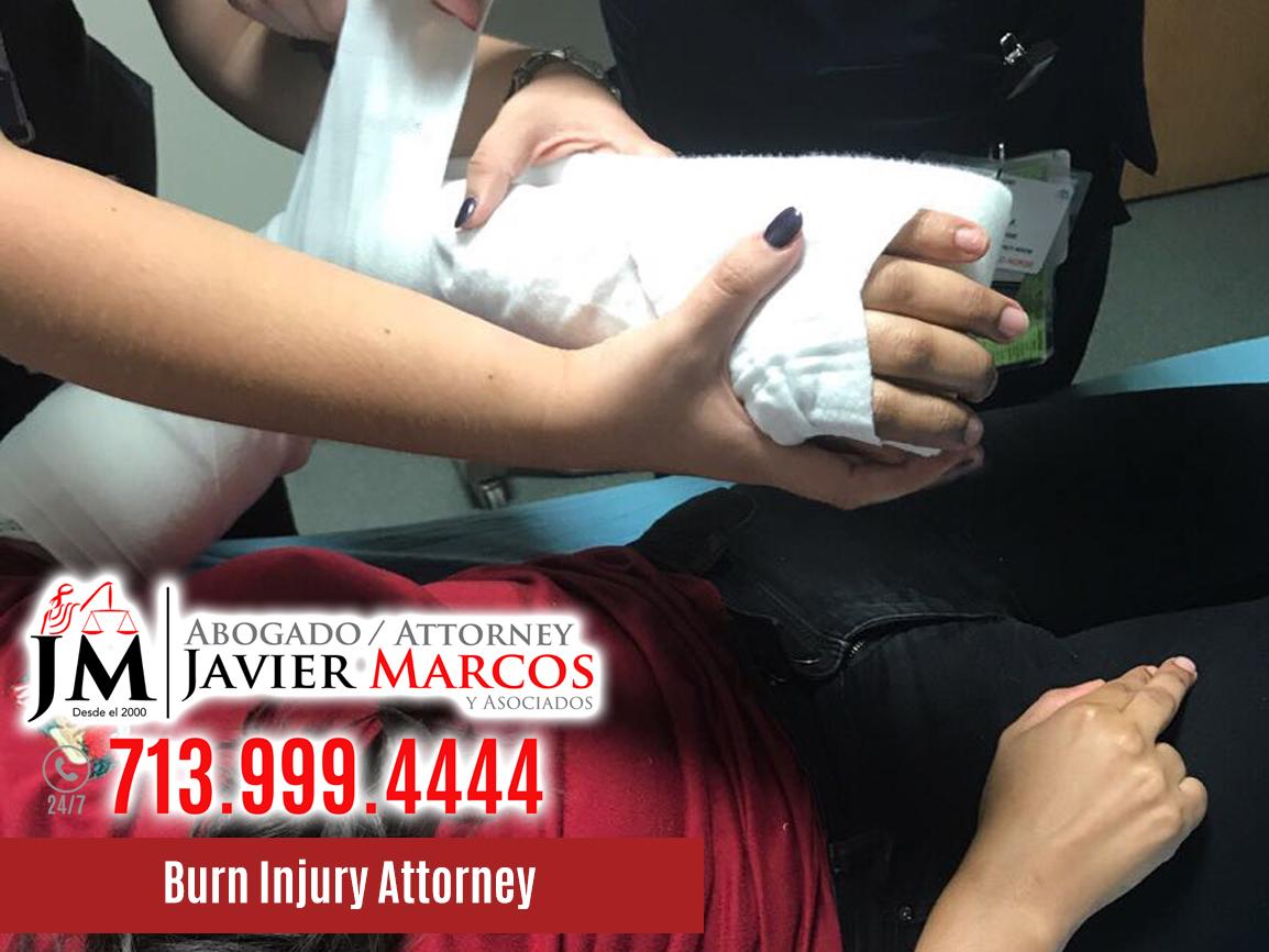 Burn Injury Attorney | Attorney Javier Marcos | 713.999.4444