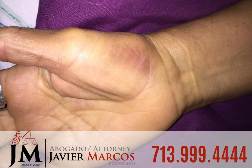 Injured at work | Attorney Javier Marcos | 713.999.4444