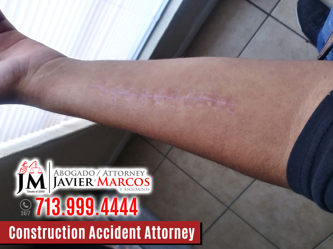Construction Accidents Attorney   Attorney Javier Marcos   713.999.4444